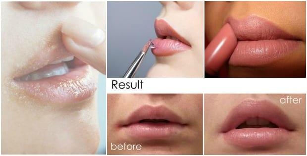 lips proc