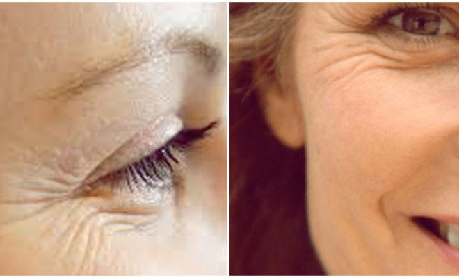 Hábitos que están causando arrugas en tus ojos.