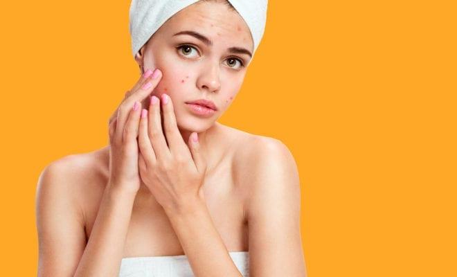 7 Pasos para deshacerte del acné.