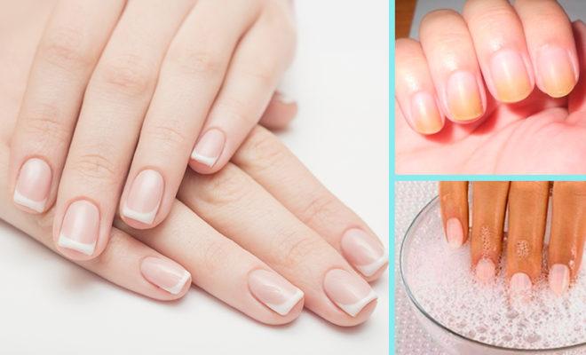 3 pasos para blanquear tus uñas amarillas