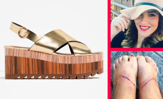 Estos zapatos le provocaron grandes daños a esta mujer…