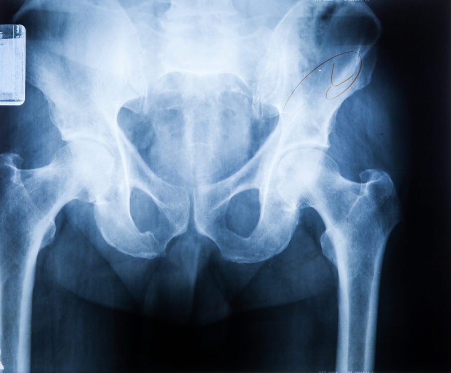 X ray MRI - Image of Spine pain and Hip bone