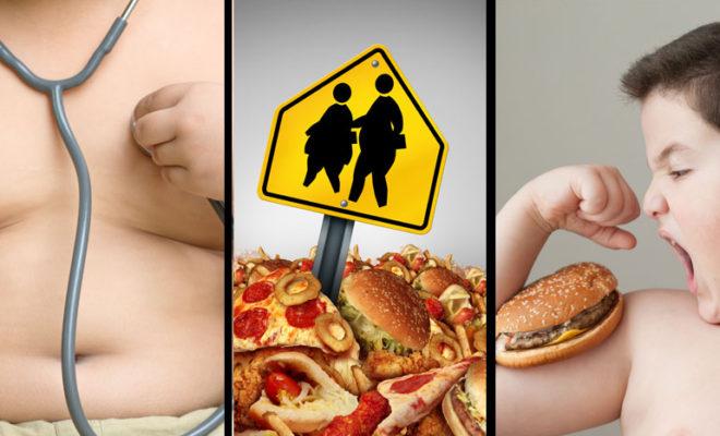 Obesidad infantil. ¿Mi hijo es obeso?