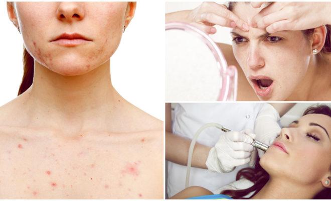 Cómo deshacerte de las cicatrices del acné