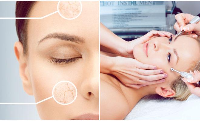 Fotorejuvenecimiento, el mejor tratamiento antiarrugas sin bisturí
