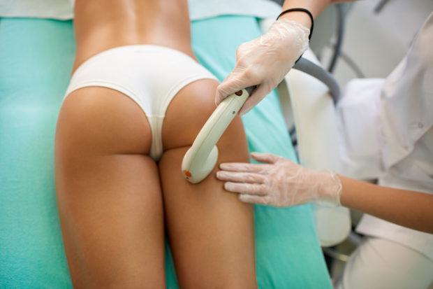 Perfect shape buttocks on anti-cellulite treatment