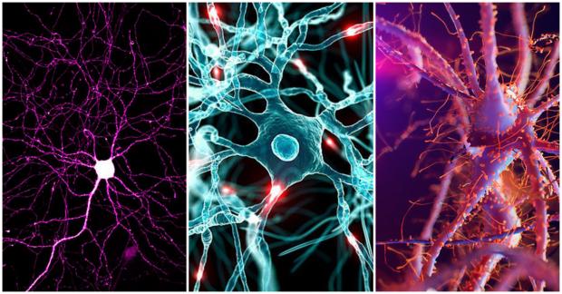 Diferencias del cerebro hombre y mujer