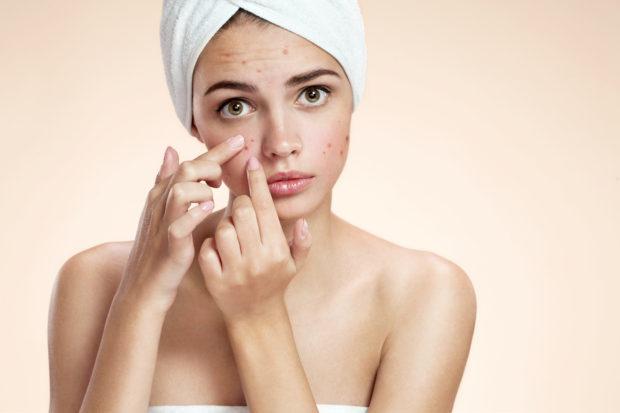 acne-belleza