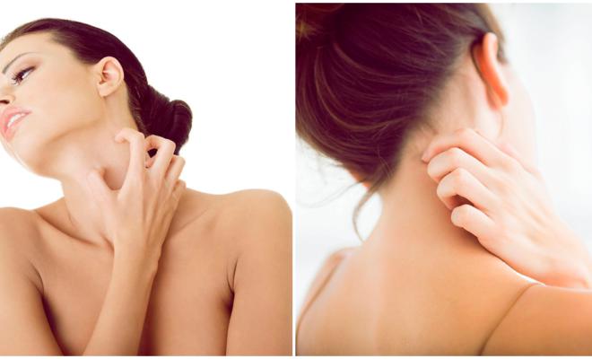 Erupciones en la piel: ¿alergia o estrés?
