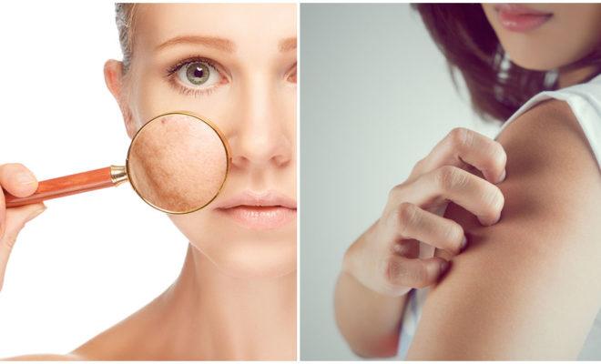 ¿Tienes la piel asfixiada?