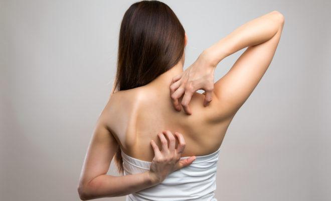 Evita la picazón en la piel