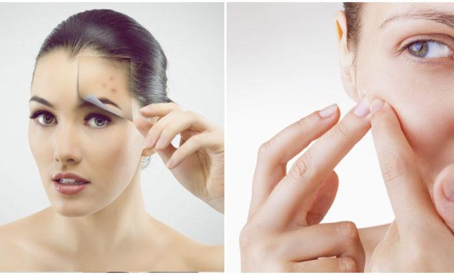 ¿Por qué el acné sigue presente si ya no soy una adolescente?