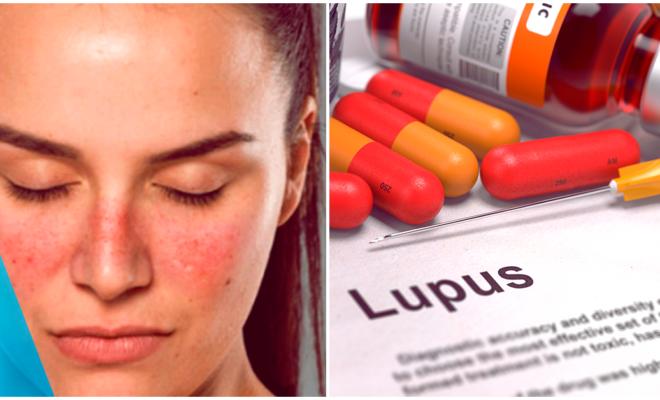 Lupus, todo lo que debes saber acerca de él
