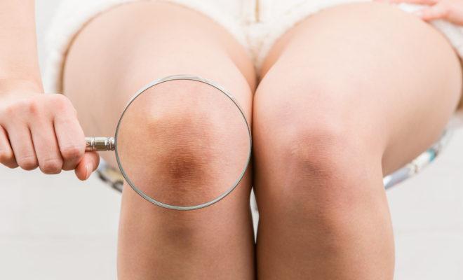 DIY: Aclarante para la piel de tus rodillas