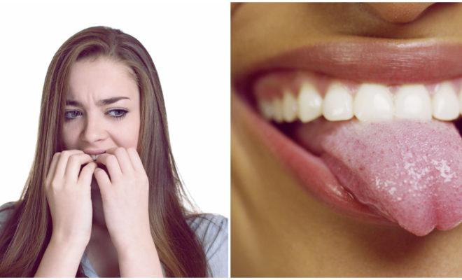 Fobia a la ¡saliva!… sí existe