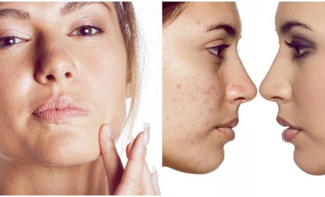 Trucos de makeup para chicas con acné