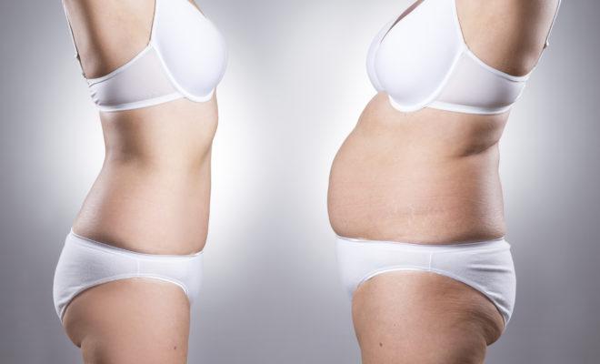 Cirugía de abdomen: estas son las nuevas tendencias