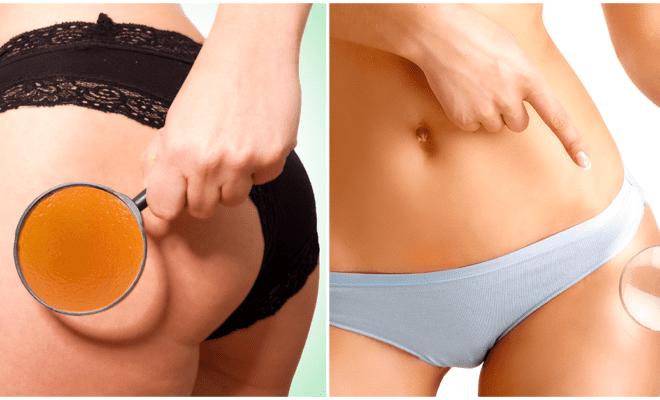 Tips para mejorar la textura de tu piel y olvidarte de la celulitis