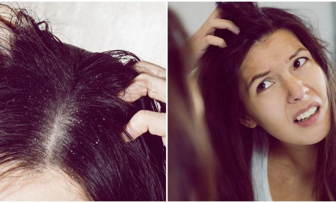 Los mejores remedios para eliminar las costras en el cuero cabelludo