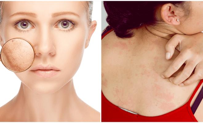 El hábito número 1 que daña tu piel