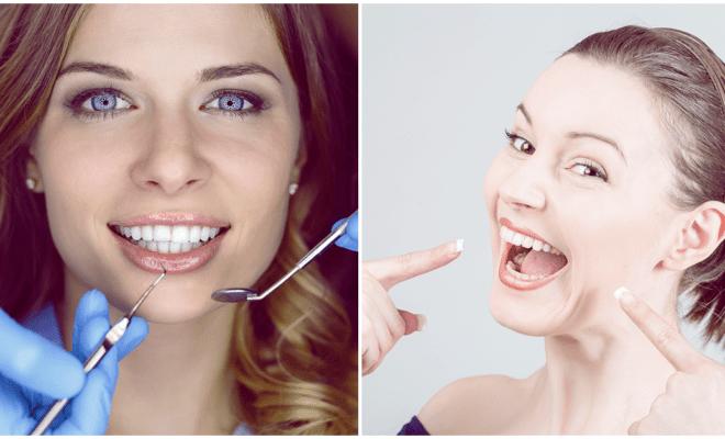 3 razones básicas por las cuales deberías cuidar tus dientes