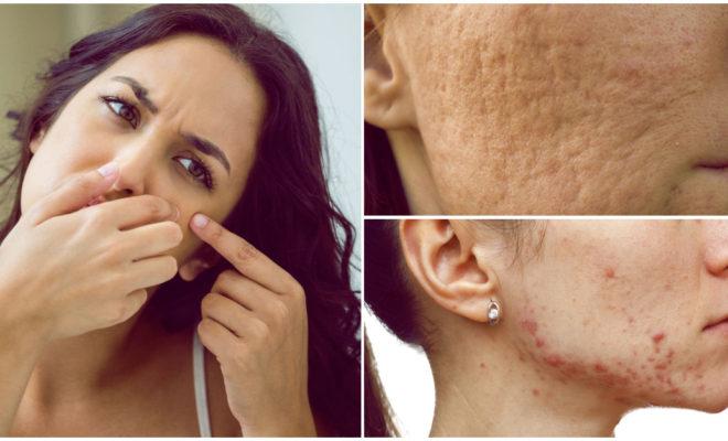 Consejos para evitar las cicatrices por acné