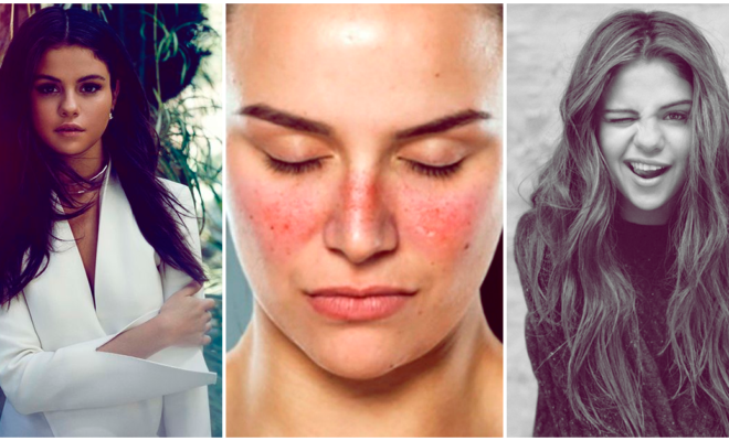Conoce más acerca del lupus, la enfermedad que afecta a Selena Gómez