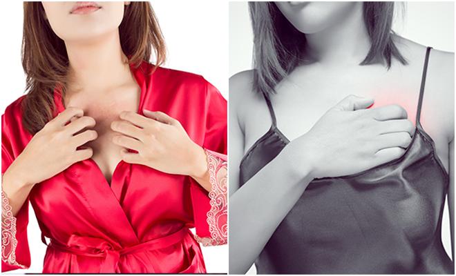 Picazón en los senos, ¿a qué se debe?