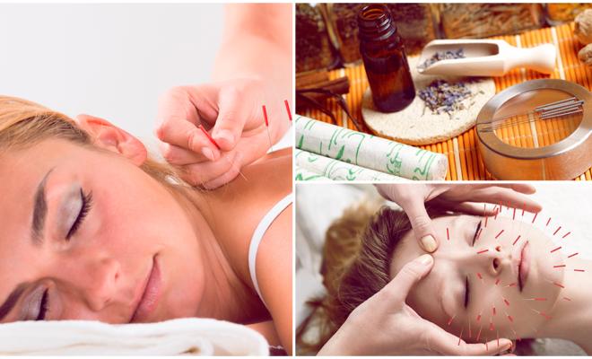 La acupuntura puede ayudarte a mejorar tu deseo sexual