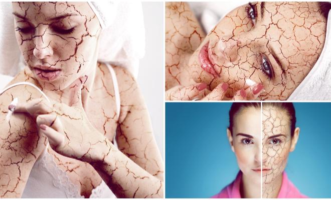 7 cuidados que necesitas para evitar a toda costa la piel reseca