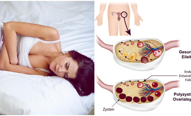 Estos síntomas podrían indicarte si sufres de ovario poliquístico