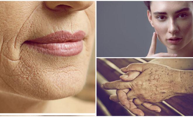 Si te aterra envejecer, recuerda que la edad no lo es todo cuando se trata de arrugas