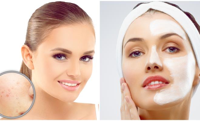 DIY efectiva mascarilla para piel irritada por presencia de rosácea