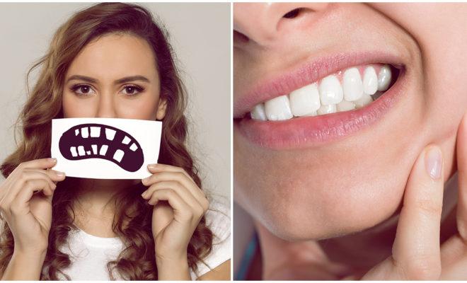 Cómo afecta el estrés a tus dientes; ¡no pierdas la sonrisa!