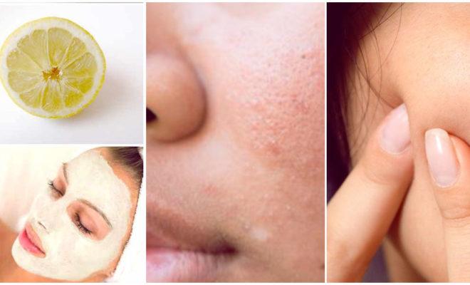 5 formas de prevenir las cicatrices de acné