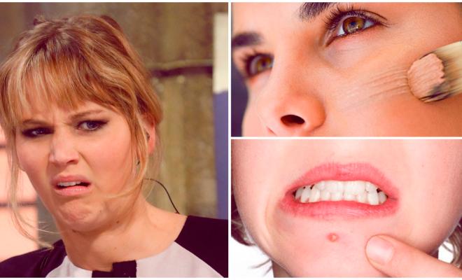 Todo lo que no sabías del acné, ¡impresionante!
