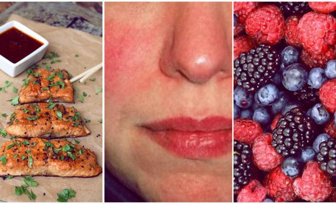 Evita las odiosas rojeces en tu piel comiendo estos alimentos
