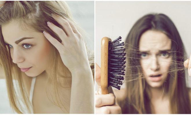 Tratamientos que evitan la pérdida de cabello rápidamente