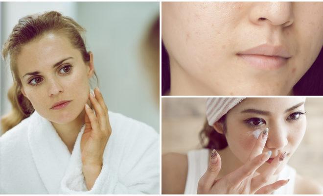 Tips para prevenir manchas en el rostro