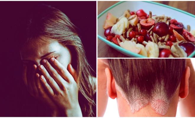 Hábitos que debes tener sí o sí  cuando tienes psoriasis