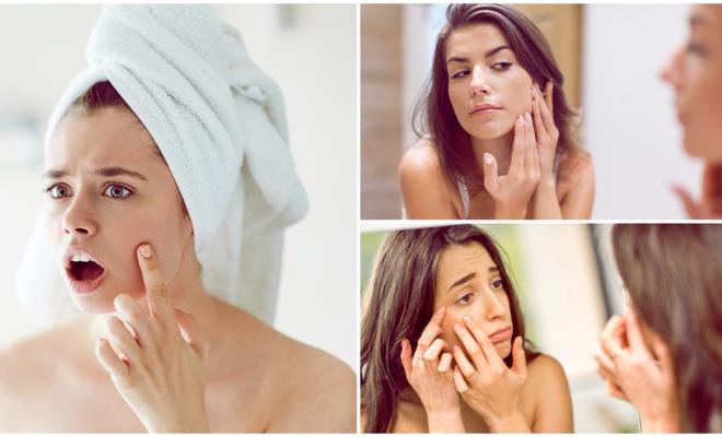 Esta vitamina podría ser la causa de tu acné