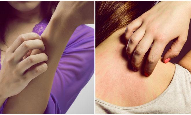 Cómo reconocer y tratar la dermatitis seborreica