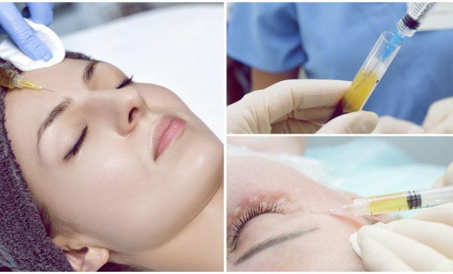 PRP el relleno ideal para prevenir y eliminar las arrugas del rostro