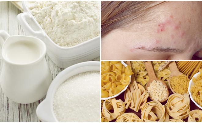 Alimentos que producen acné, lo asegura la ciencia