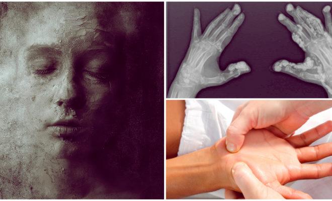 """Esclerodermia, la enfermedad que te convierte en """"piedra"""" 😦"""