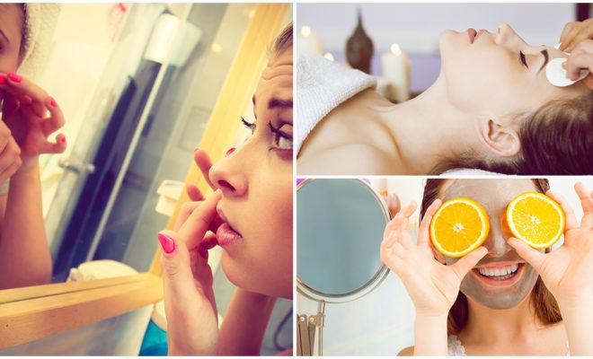 5 formas naturales de acabar con el acné