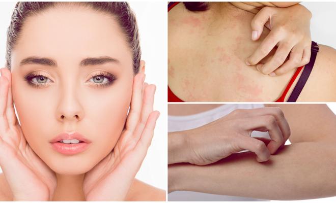 Consejos para cuidar tu piel si es demasiado sensible