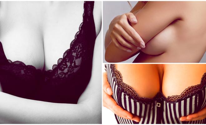 Las estrías en los senos son más comunes de lo que imaginas, aprende a prevenirlas