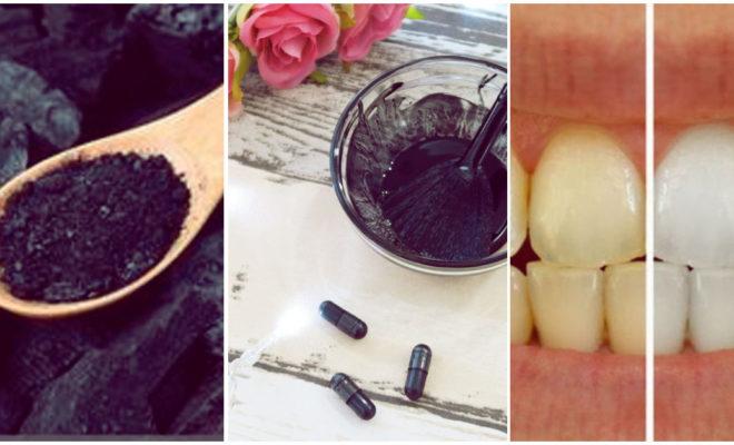 Probé aclarar mis dientes con carbón activo durante 15 días
