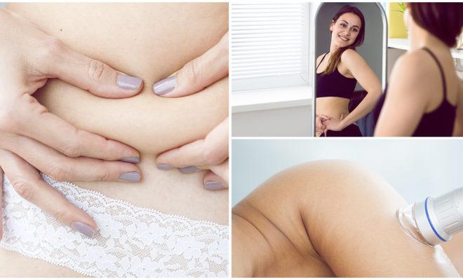 ¿Te someterías a la utracavitación para perder peso?